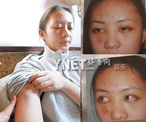Năm 2003, Đồng Dao lại càng được chú ý nhưng bởi lùm xùm về đời tư. Nữ diễn viên bị bạn trai Trương Mặc (con trai Trương Quốc Lập)