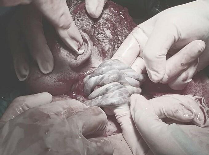Em bé Sơn La chào đời 6 vòng rau quấn quanh cổ