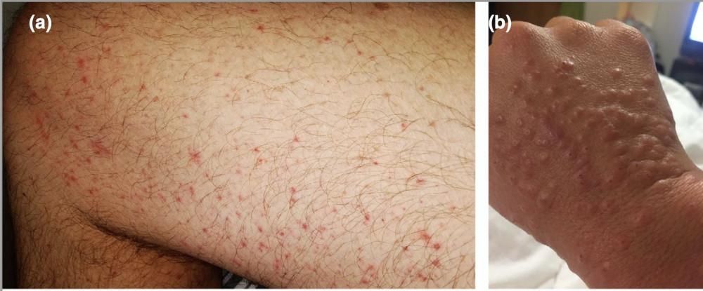 Dát sẩn quanh nang lông (trái) và tổn thương sẩn thâm nhiễm đầu cực giống mụn nước (phải)