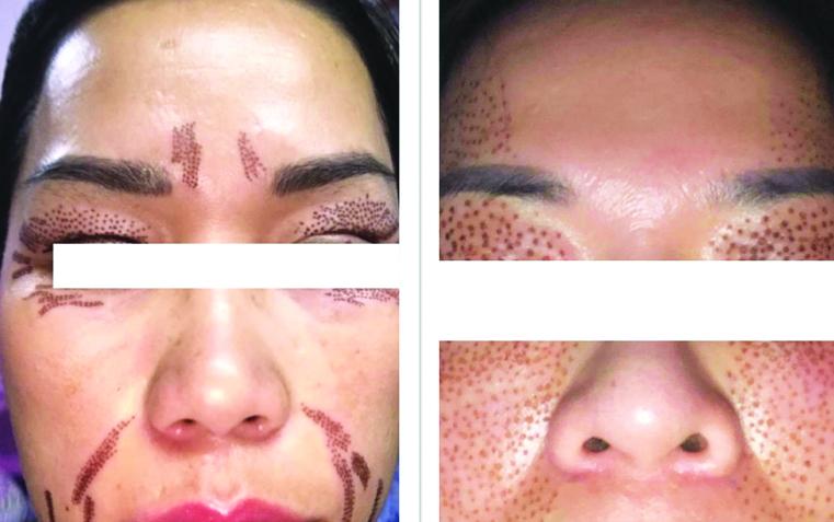 Hai trường hợp bị biến chứng thâm nám nghiêm trọng sau khi trẻ hóa da  bằng plasma tại spa