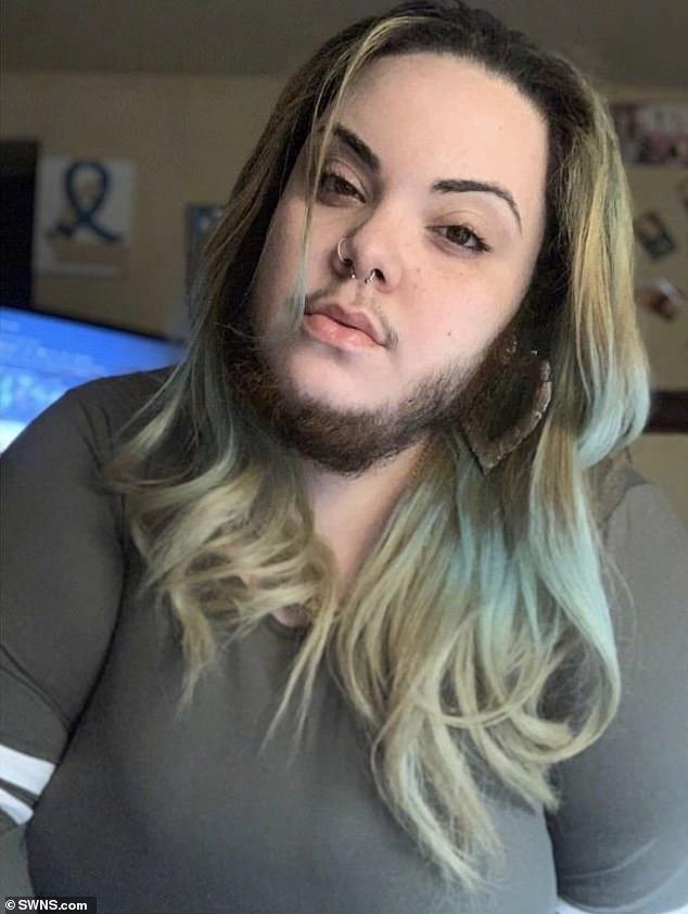 Cô gái 27 tuổi này đã từng trải qua những ngày tháng khổ sở vì bộ râu bất đắc dĩ của mình