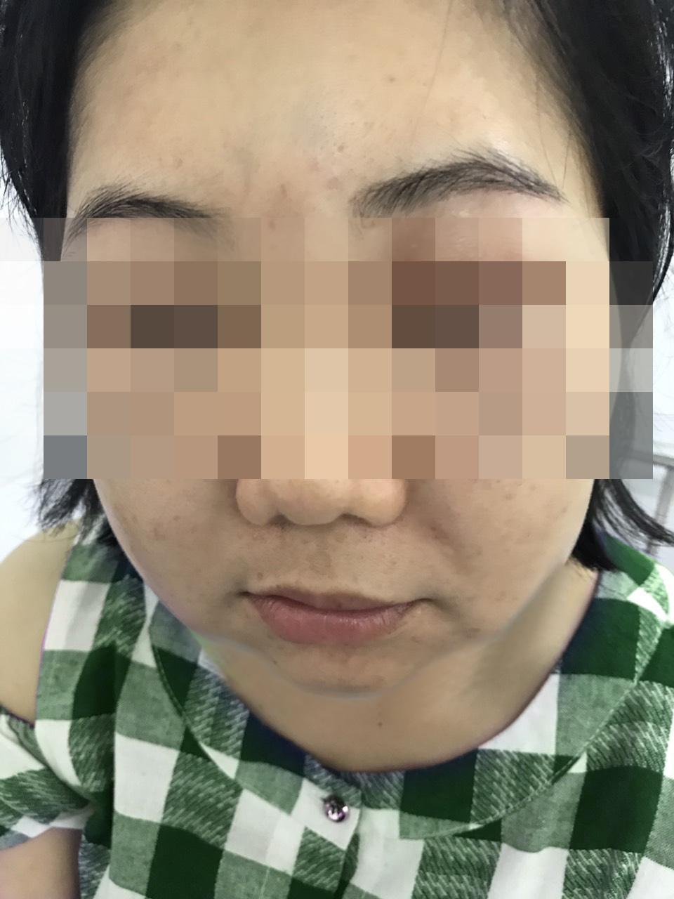 Chị H. bị sưng phù, đau nhức mặt sau khi làm đẹp, ảnh BVCC