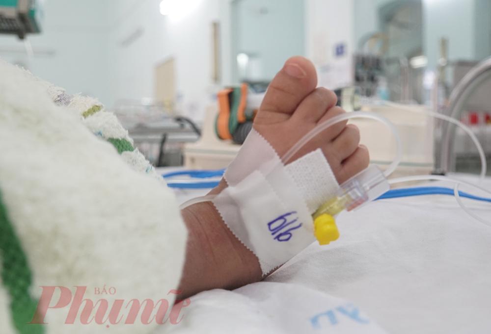 Thời gian qua, bệnh viện đã tiếp nhận 3 trẻ sốt xuất huyết nặng được đưa đến, trong đó 2 trẻ sốc sốt xuất huyết biến chứng suy đa tạng đã được điều trị ổn định, 1 trẻ phải theo dõi biến chứng viêm màng não.