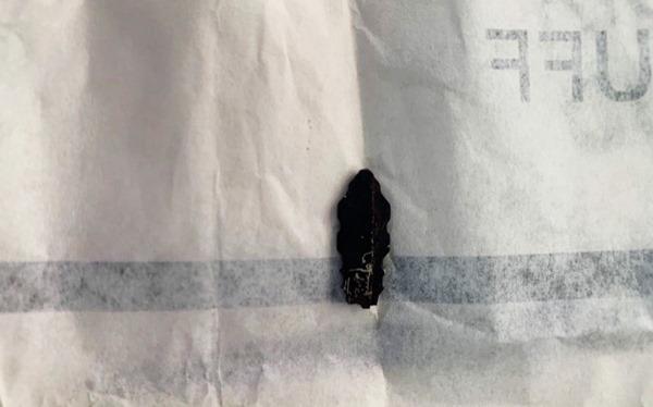 Đầu chìa khóa đã hoen rỉ nằm phía sau tai bệnh nhân vừa được các bác sĩ phẫu thuật lấy ra sau gần 1 năm