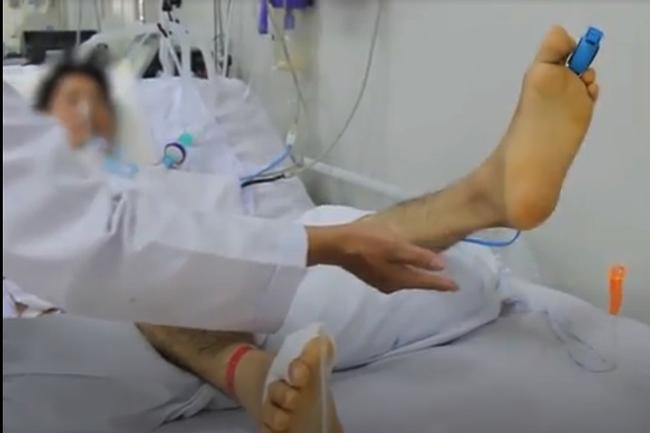 Anh D. nâng chân theo y lệnh của bác sĩ