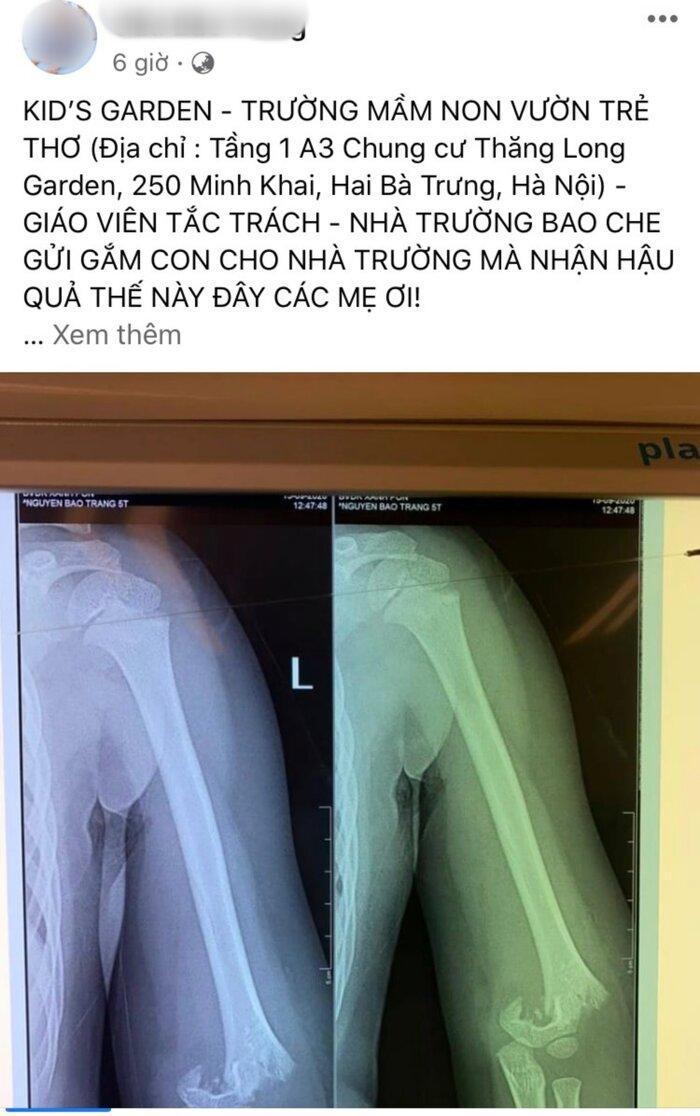 Hình ảnh cánh tay cháu bé bị gãy được chia sẻ trên mạng xã hội