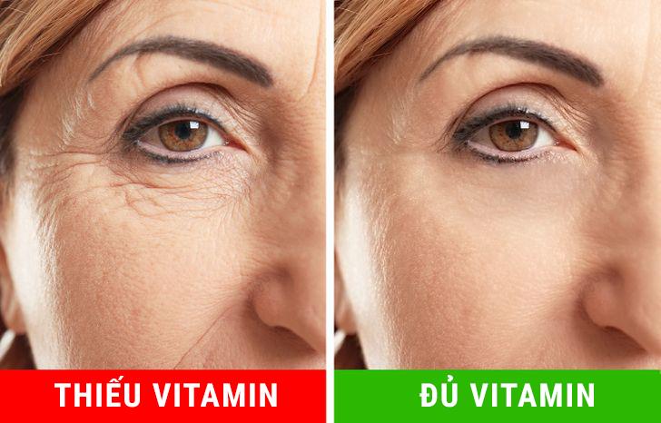 Các vitamin A,C, E và kali rất cần thiết cho một làn da khỏe mạnh. Bạn nên bổ sung rau xanh nhiều hơn trong khẩu phần ăn uống hàng ngày của mình, đặc biệt là dầu oliu.