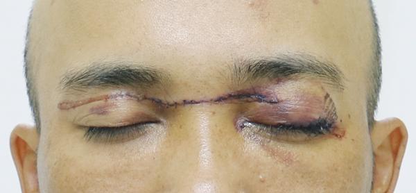 Anh V. phải khâu nhiều mũi sau khi bị mắc phải dây diều khiến phần mi trên mắt trái suýt đứt lìa