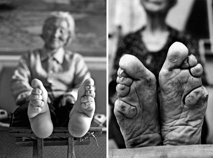 Truyền thống bó chân tại Trung Quốc lưu giữ đến thời nhà Thanh.