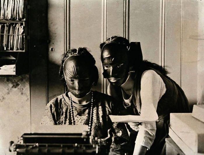 Mặt nạ làm đẹp bằng cao su được sử dụng để loại bỏ nếp nhăn trong những năm 1920.