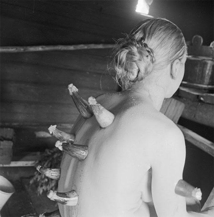 Một hình thức giác hơi được thực hiện trong phòng tắm hơi tại Phần Lan năm 1935