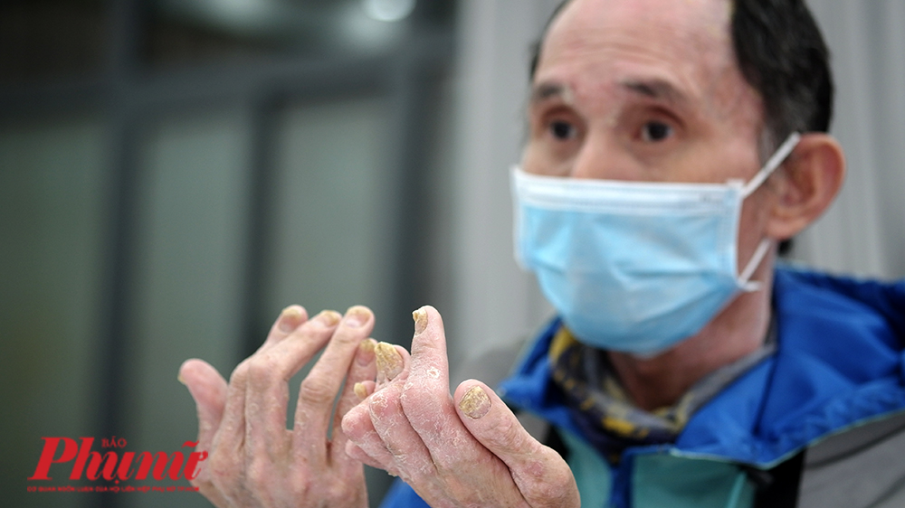 Ông Đ.V.H. đã 7 năm phải sống chung với căn bệnh vảy nến