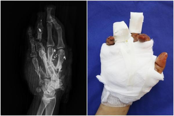 Hình ảnh chụp X-quang bàn tay phải của người bệnh và sau khi đã phẫu thuật bảo tồn các ngón tay và xương bàn cho người bệnh