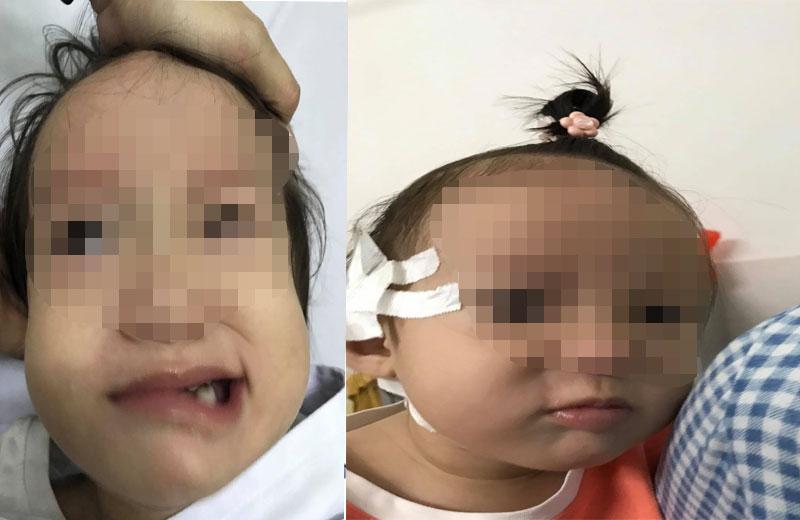 Bệnh nhi bị liệt mặt (lúc chưa mổ) và sau khi mổ
