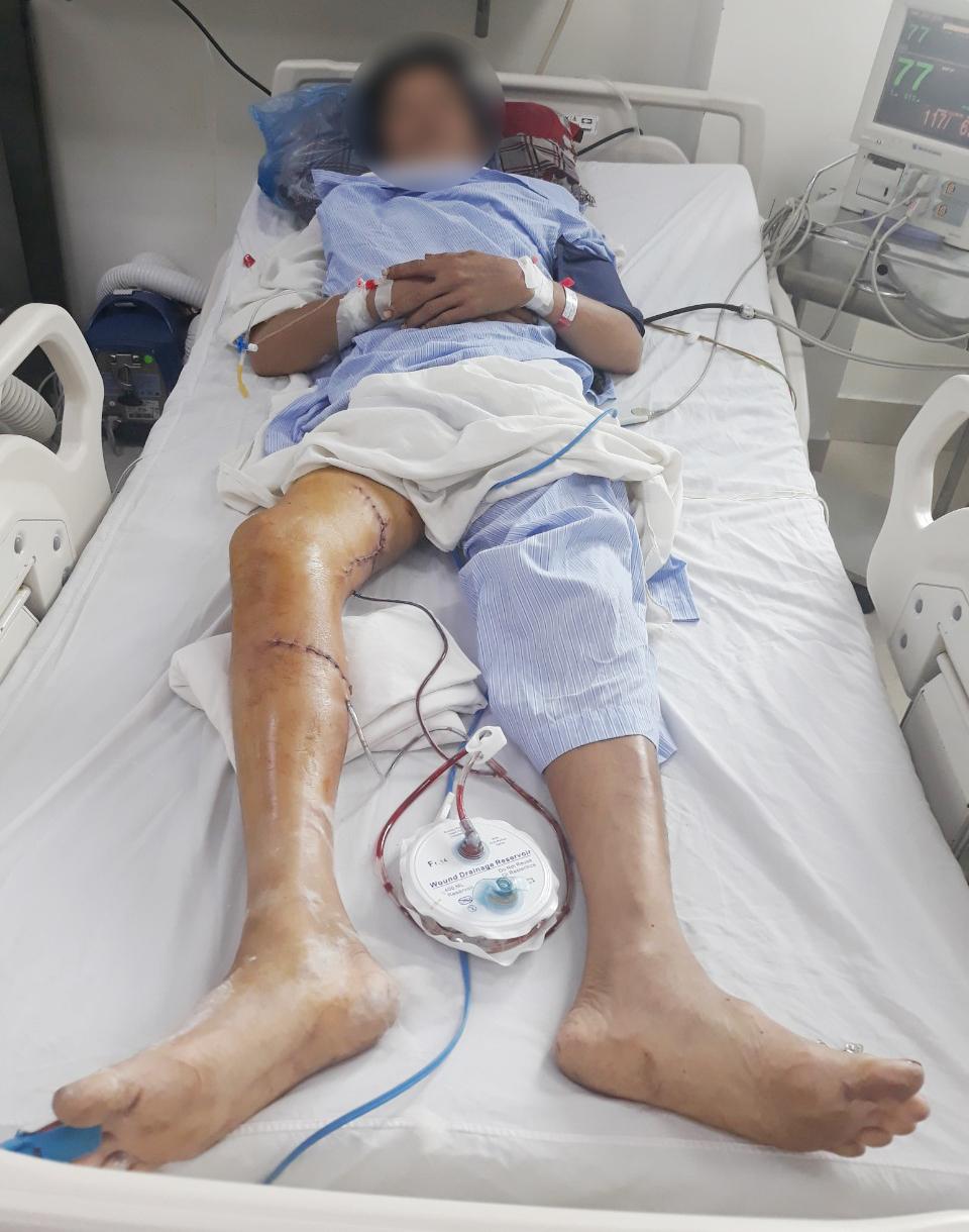 Tình trạng bệnh nhân sau mổ. Ảnh: BVCC