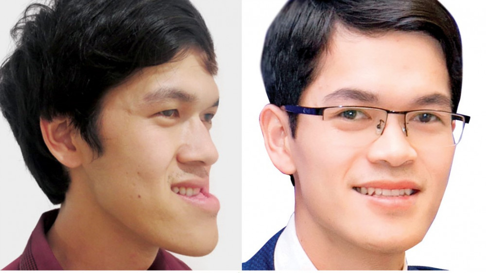 Cấu trúc gương mặt Thục hoàn toàn hết tình trạng hàm móm. Ảnh: BV Thẩm mỹ Hàn Quốc JW