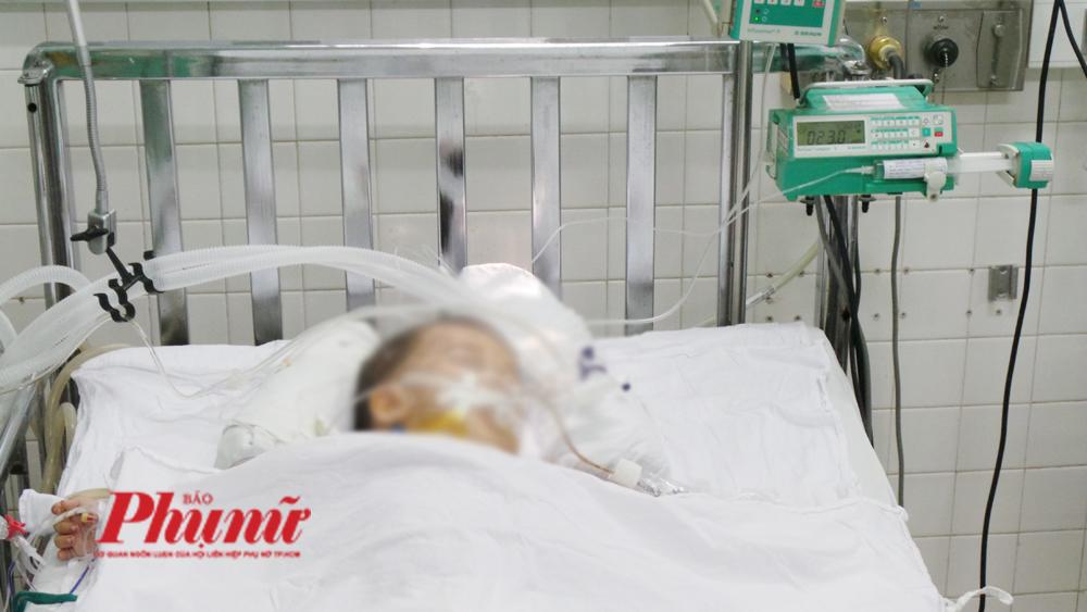 Một em bé đang được nằm hồi sức tích cực tại BV Nhi đồng 2.