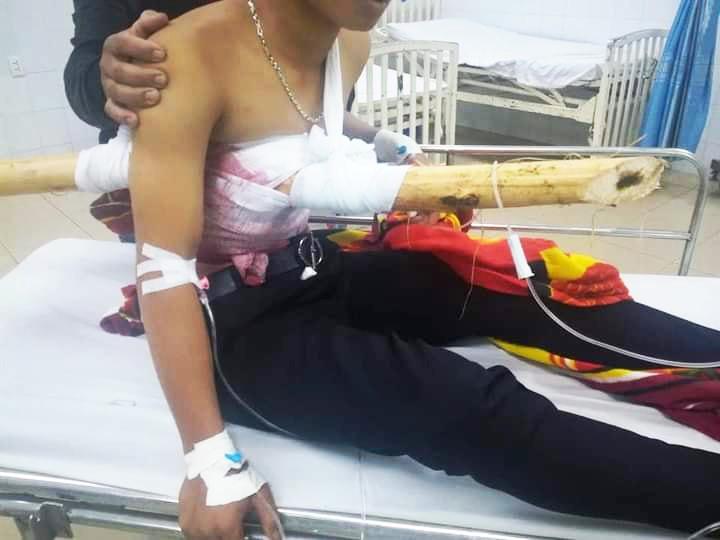 bệnh nhân Phạm Văn T bị cây gỗ keo đâm thấu ngực từ trước ra sau