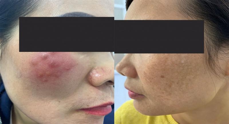 U hạt da (bên trái) và vết thâm loang lổ do điều trị nám sai cách.