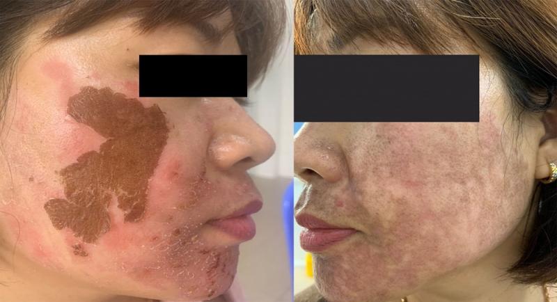 Bệnh nhân bị bỏng da do trị nám bằng hóa chất lột tẩy.