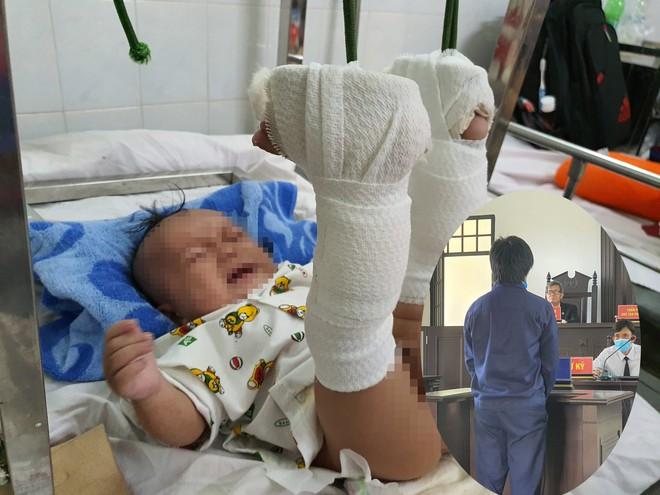 Bé trai 4 tháng tuổi bị cha đánh gãy chân, tỉ lệ thương tật 37% chỉ vì quấy khóc trong khi ba tức giận mẹ. Ảnh từ Internet