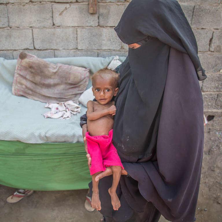 Một bà mẹ người Yemen đang bế đứa con nhỏ bị bệnh nhưng không có tiền để đưa đi bệnh viện - Ảnh: