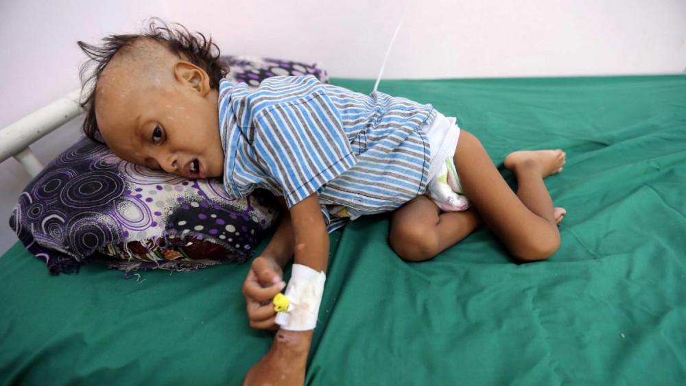 Hầu như toàn bộ hệ thống y tế địa phương của Yemen đều bị ngưng hoạt động khiến nhiều trẻ em không thể tiếp cận các dịch vụ y tế cơ bản - Ảnh:
