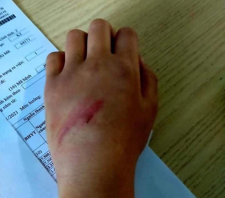 Vết thương trên tay cháu B.