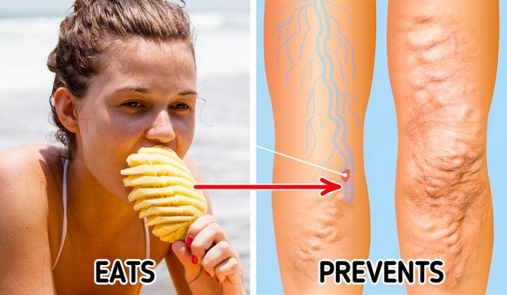 2. Dứa phá vỡ cholesterol.  Dứa là một loại trái cây có chứa chất đốt cháy chất béo tự nhiên bromelain, giúp cơ thể chúng ta phân hủy protein và tiêu hóa chúng. Dứa đặc biệt hiệu quả trong việc phá vỡ cholesterol và loại bỏ nó ra khỏi cơ thể. Chúng làm loãng máu và phá vỡ các cục máu đông. Dứa là tốt nhất nếu ăn tươi và không nên ăn dứa đóng hộp vì enzyme bromelain bị phá hủy trong quá trình đóng hộp.