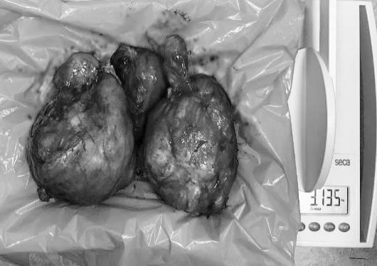 Ê-kíp bác sĩ phẫu thuật cắt khối u nặng hơn 3kg bằng phương pháp mổ hở. Nguồn ảnh: Bệnh viện Sản Nhi TWG Long An