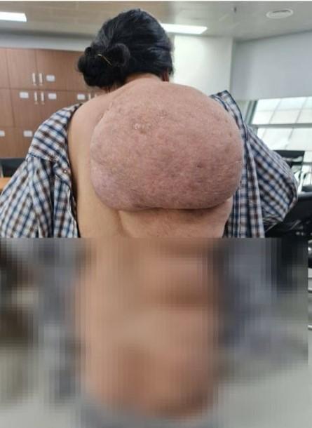 Nữ bệnh nhân gánh khối u khổng lồ như chiếc mai rùa trên lưng