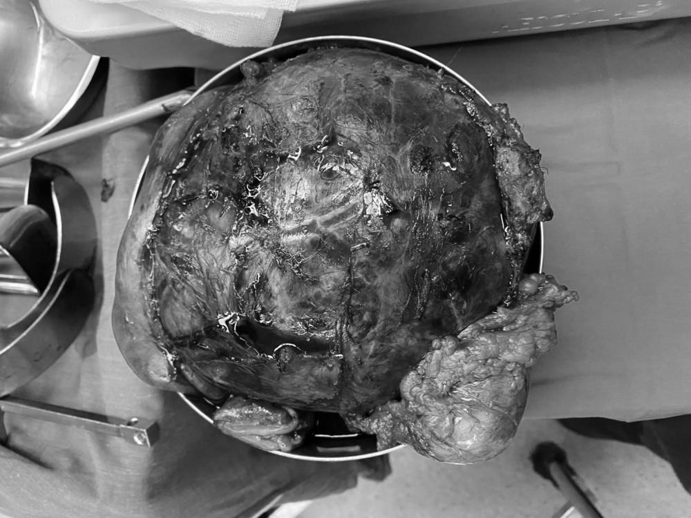 Khối u nặng đến 2,2 kg trong bụng chị T. khiến ai cũng nghĩ chị chắc đang mang bầu