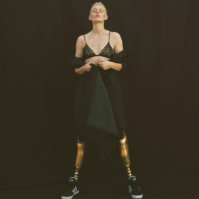 Lauren Wasser bị cụt hai chân nhưng vẫn theo đuổi được sự nghiệp người mẫu.