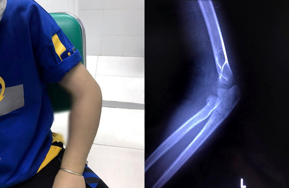 Cánh tay bé T. bị gãy xương nhưng kiêng cữ bệnh viện đến cứng khớp