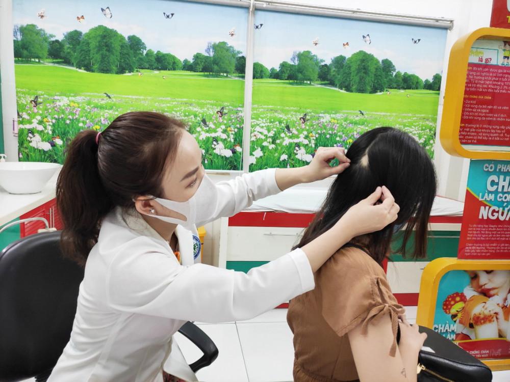 Chị T. rụng tóc lộ da đầu vì căng thẳng kéo dài