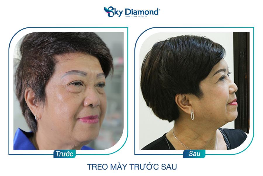 Cô Tuyết Mai sau treo mày xong, tình trạng sụp mí và bọng mỡ được cải thiện rõ. Ảnh: Sky Diamond cung cấp