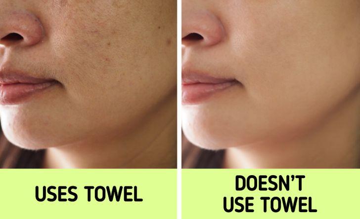 Gây ra mụn cho da: Lau khô mặt bằng chính chiếc khăn mà bạn dùng để lau khô cơ thể gây hại cho da nhiều hơn bạn nghĩ. Khăn tắm là ổ vi khuẩn vì bạn thường cất chúng trong phòng tắm - nơi không khí ẩm ướt, là môi trường thuận lợi cho vi khuẩn phát triển. Khi dùng khăn lau mặt, tất cả vi khuẩn này sẽ tiếp xúc trực tiếp với da, gây tắc nghẽn lỗ chân lông và nổi mụn. Ngay cả khi bạn dùng khăn riêng cho mặt, bạn cũng không thể đảm bảo chiếc khăn này được giặt sạch và phơi khô sau mỗi lần sử dụng.