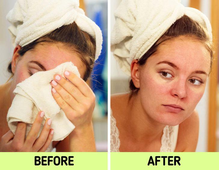 Da dễ bị kích ứng: Nếu bạn có làn da nhạy cảm, sử dụng khăn bông không phải là lựa chọn tốt nhất để làm khô da mặt bởi hầu hết các loại vải sử dụng để làm khăn đều khô ráp, dễ khiến da bị mẩn đỏ, kích ứng.