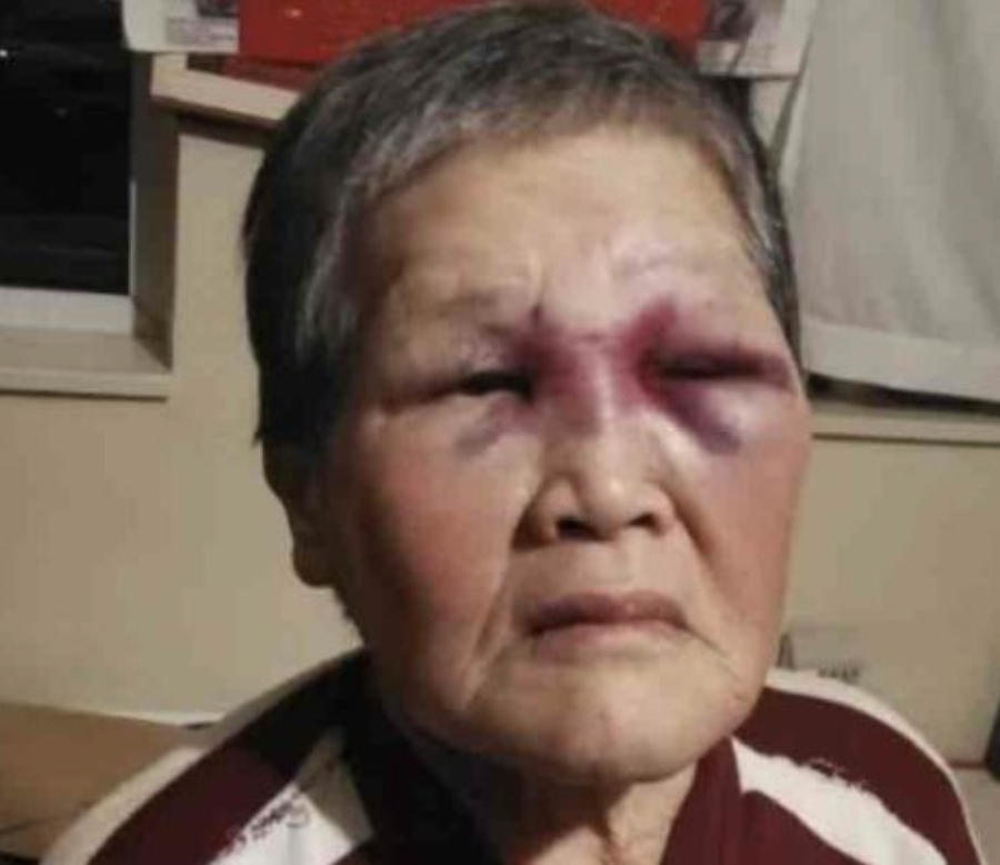 Cụ bà Xiao Zhen Xie, nạn nhân can đảm trong vụ hành hung nhắm vào người châu Á ở San Francisco, đã quyết định đóng góp toàn bộ số tiền quyên góp được cho hoạt động chống phân biệt chủng tộc - Ảnh: Yahoo News/Getty Images