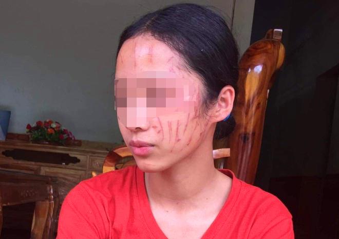 H. bị chi chít vết thương trên mặt