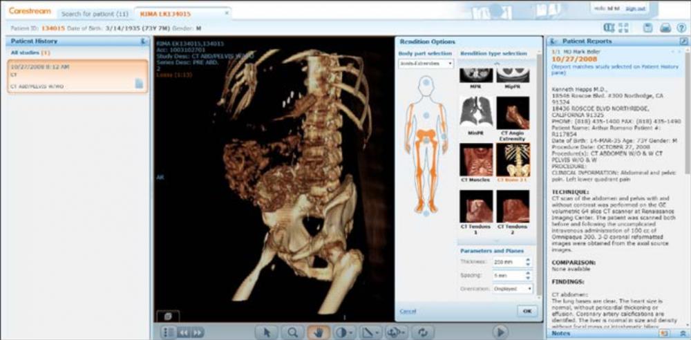 Những hình ảnh chẩn đoán được mã số hóa và tích hợp trên hệ thống My Vue