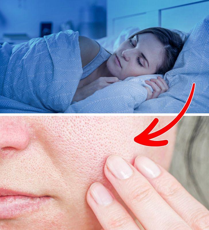 Ngăn ngừa kích ứng da: Nếu bạn có làn da nhạy cảm, dễ bị mụn trứng cá, ngủ trên một chiếc áo gối cotton có thể không phải là lựa chọn tốt nhất. Bông quá thô trên da và ma sát từ nó có thể gây kích ứng làn da mỏng manh, làm trầm trọng thêm các tình trạng da hiện có. Vì gối của bạn có thể dễ dàng trở thành nơi sinh sản của vi khuẩn, nên khi ngủ áp mặt vào gối có thể khiến bạn nổi mụn nhiều hơn.