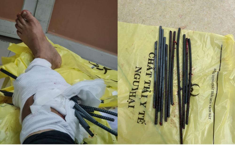 các bác sĩ đã lấy ra 11 thanh sắt dài khoảng 50-60cm