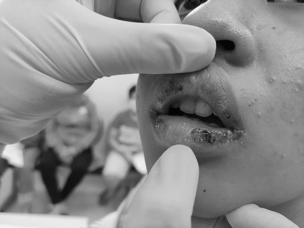 Đôi môi bị dị ứng, mưng mủ của bé N. sau khi sử dụng son, ảnh BVCC