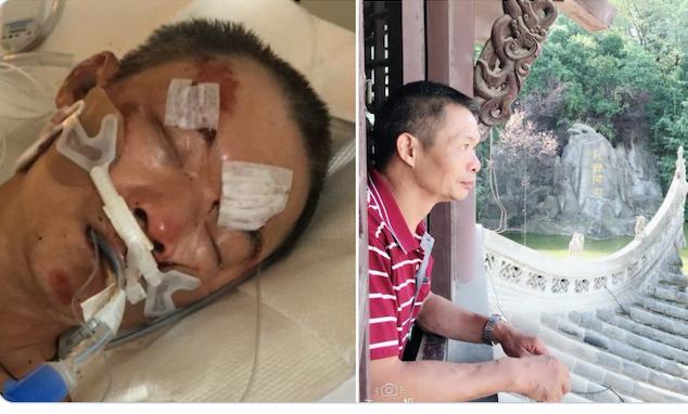 Nạn nhân Yao Pan Ma vẫn dang hôn mê sâu với nhiều thương tích ở đầu do bị kẻ tấn công giẫm đạp