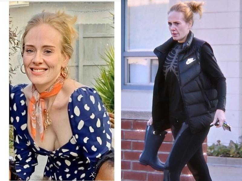 Làn da của Adele chảy xệ sau khi giảm được 20 kg.