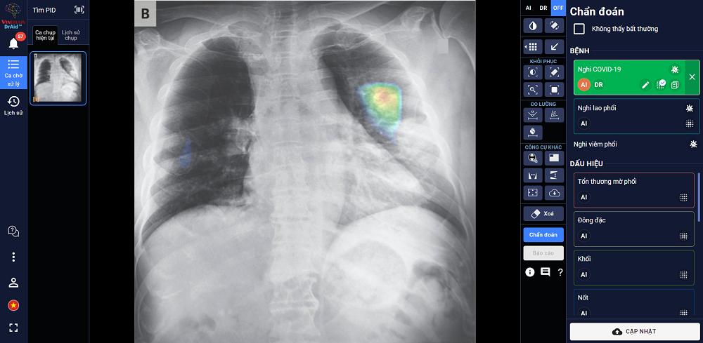 DrAid™ chẩn đoán và tiên lượng điều trị bệnh nhân COVID-19 dựa trên hình ảnh X-quang ngực thẳng