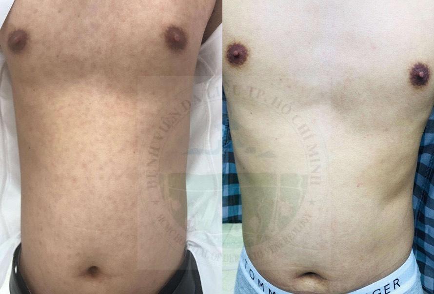 Hình ảnh bệnh giang mai trước và sau điều trị