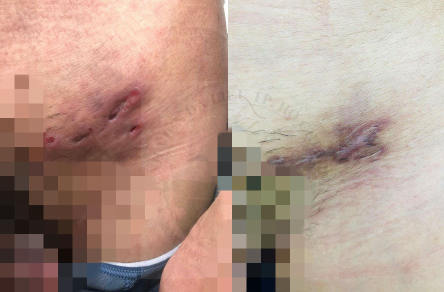 Hình ảnh bệnh hột xoài trước và sau điều trị