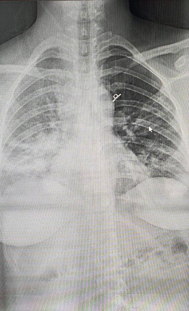Hình ảnh chụp X-quang của thai phụ mắc COVID-19